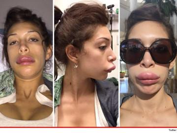 Farrah Abraham Gets More Plastic Surgery RejuvenNOT!!